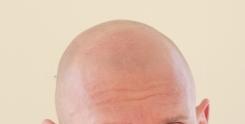 ハゲ頭の画像